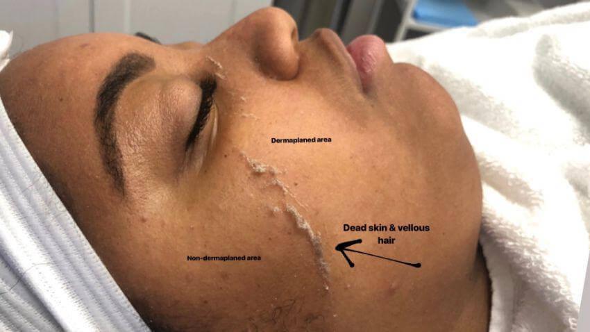 Hydrafacial & Dermaplane