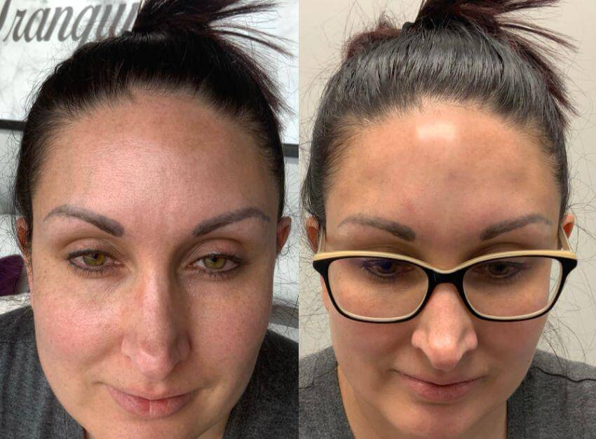 Hydrafacials + ZO Skin Care