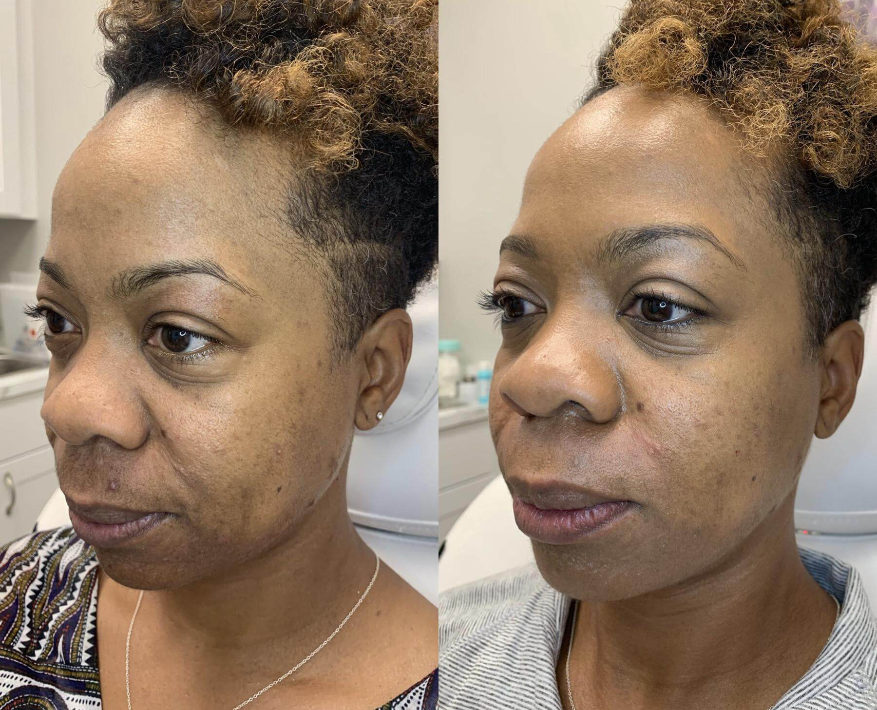 Juvederm Voluma & Ultra XC to Cheek and Nasolabial Folds