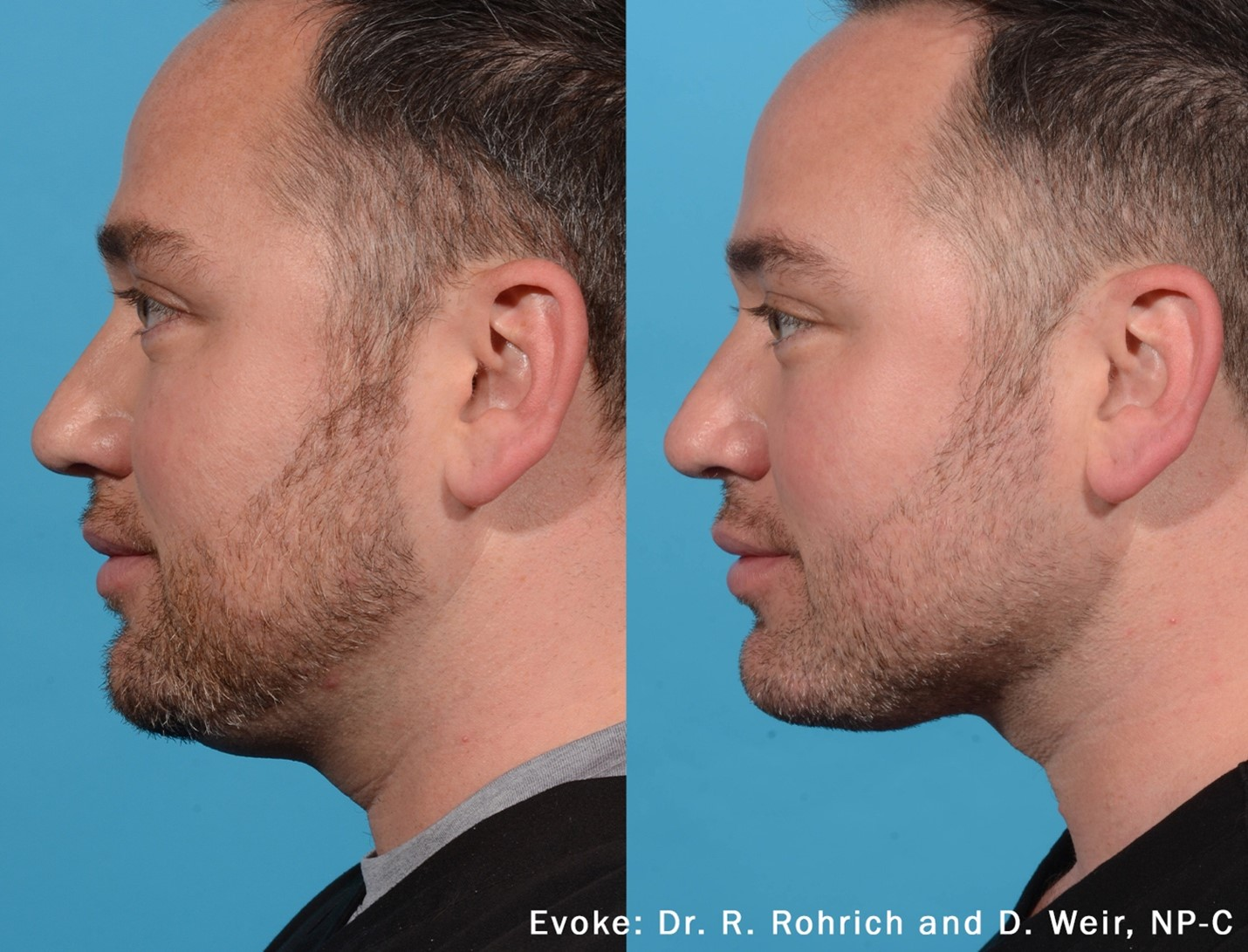 Evoke - Face Tightening Procedures