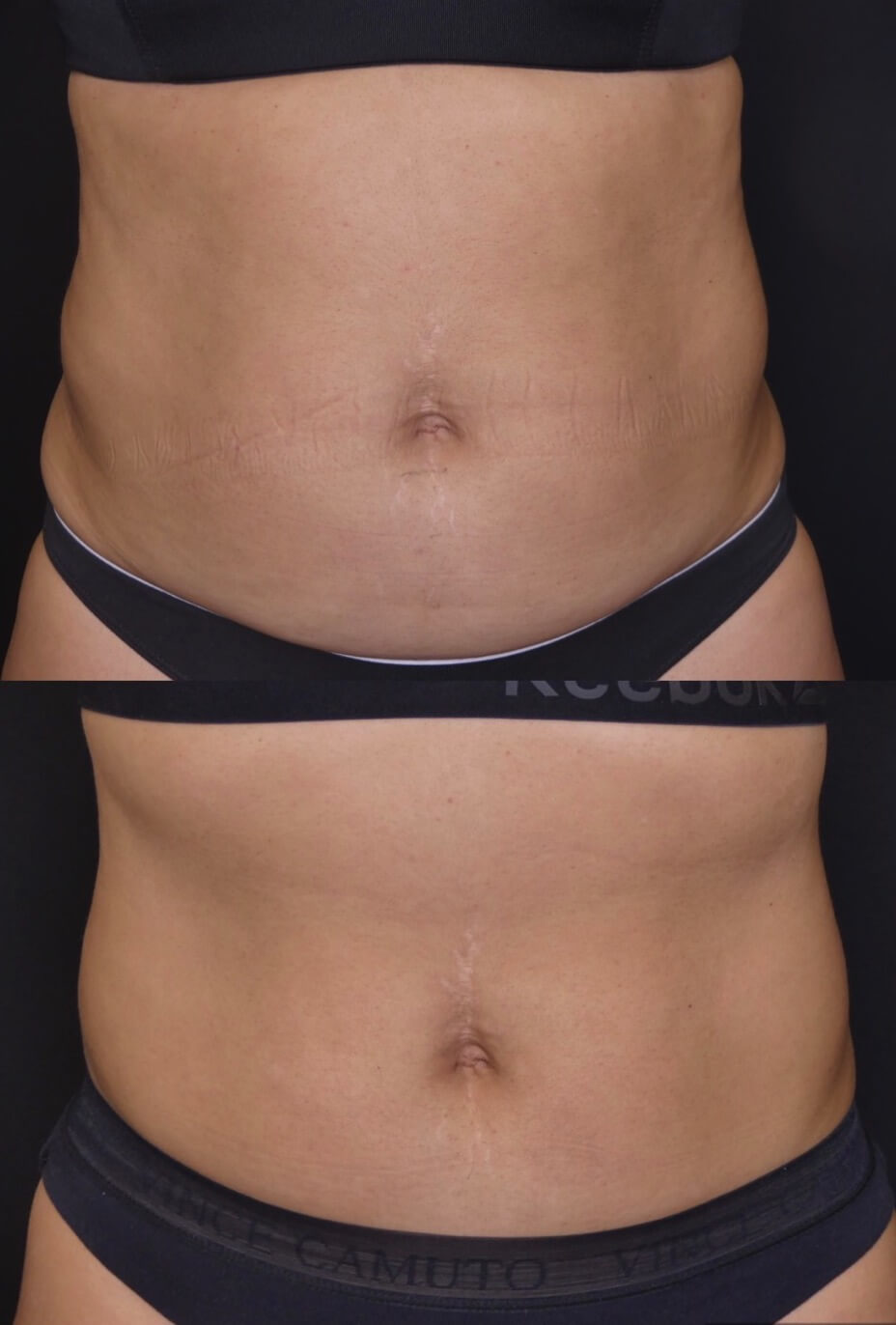 Before & After Medical Spa Treatment